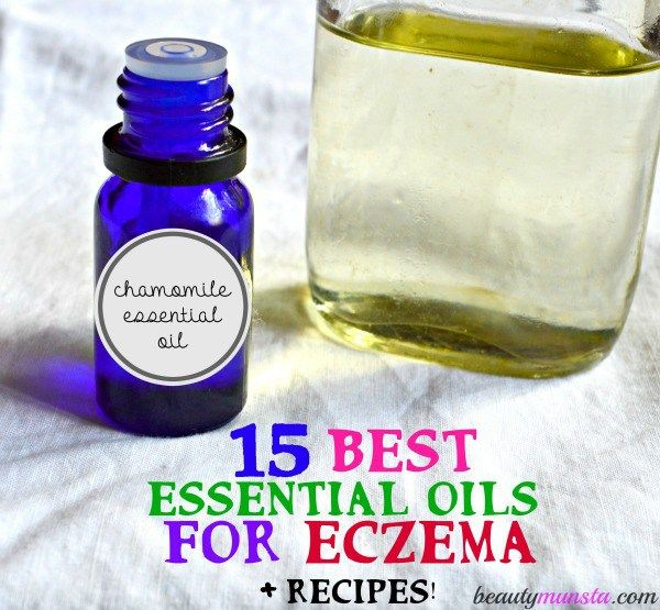 Ici's how you can treat eczema with 15 of the best essential oils. Recipes included!