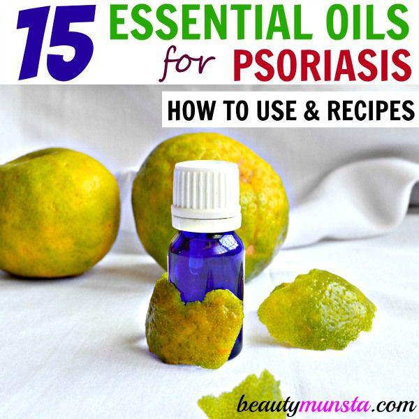 Fotografía - Liste des meilleures huiles essentielles pour traiter le psoriasis et recettes