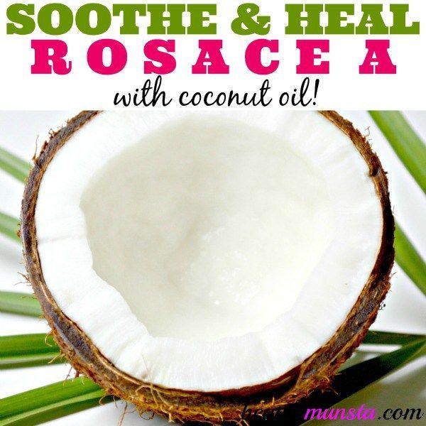 Fotografía - La rosacée Coconut Oil Treatment pour apaiser et guérir